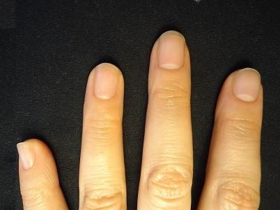 我が子が真似する爪噛み癖