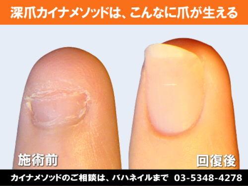 深爪でブライダルネイルするならカイナメソッドによる深爪矯正