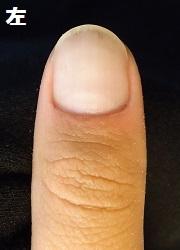 自爪がほぼ生えていない男性
