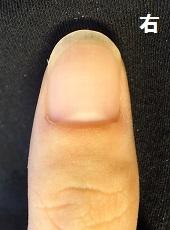 カッコイイ爪に変化した男性