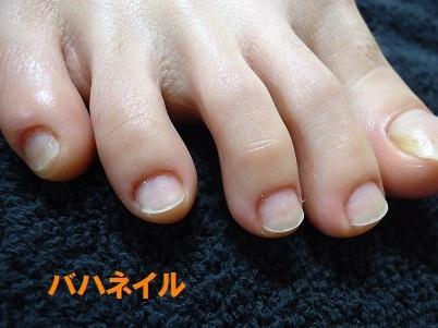 足の爪をむしっていた方の深爪矯正