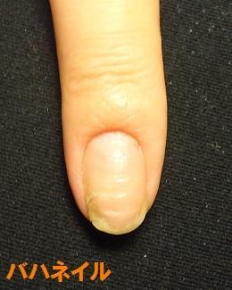 爪のデコボコを矯正の爪の変化画像