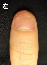 爪をむしる癖が原因の深爪矯正による爪の変化画像