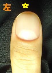 爪を噛む癖からデコボコ爪になった男性の深爪矯正の変化画像