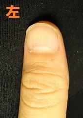 爪を噛む癖から爪がデコボコになり深爪矯正に通われたゲストの変化画像