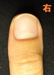 そり爪も治せる深爪矯正の変化画像