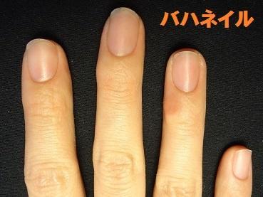 爪のデコボコの原因になる爪噛みも治せる深爪矯正の変化画像