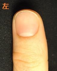 カイナメソッドによる深爪自立矯正で爪噛みを改善されたお客様の声