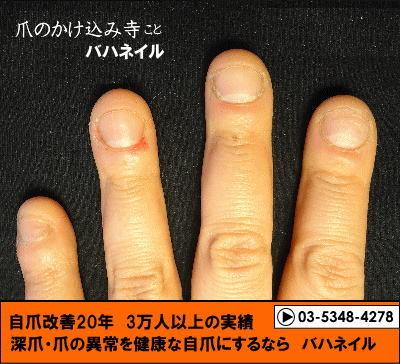 爪をむしる癖も治すカイナメソッドの深爪自立矯正の変化画像