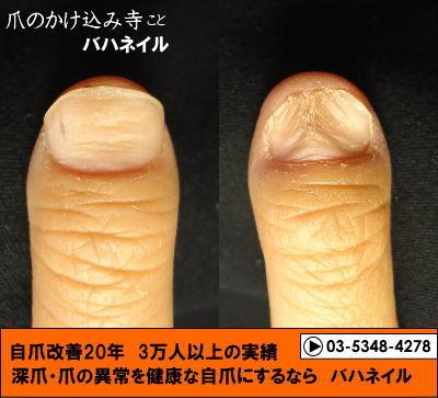 爪のデコボコ・深爪矯正(カイナメソッド)の変化画像