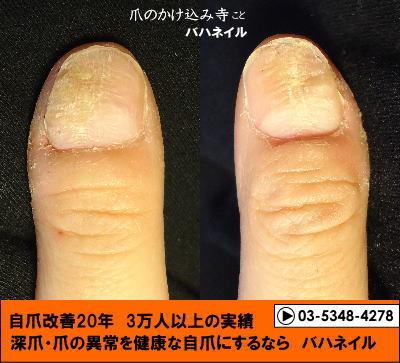 バハネイルの自爪矯正で爪のデコボコを治そう