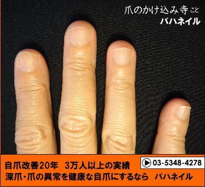 カイナメソッドによる深爪自立矯正の変化画像!