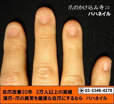 カイナメソッドの深爪矯正で爪噛みと深爪を治そう