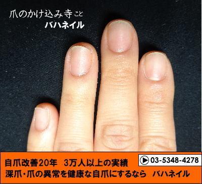 カイナメソッドのカイナメソッドで爪噛みと深爪を治そう