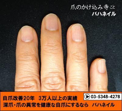 カイナメソッドで深爪を治した爪の変化画像
