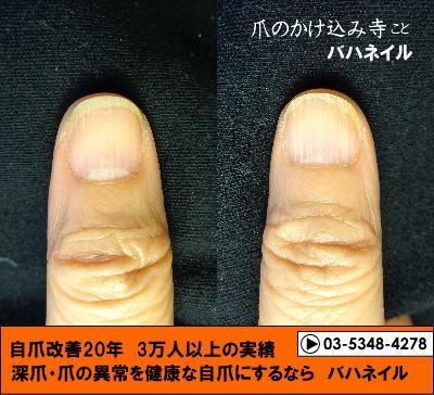 深爪矯正で深爪を治した爪の変化画像