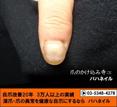 爪と爪周りをむしる癖 カイナで改善!! バハネイルの健康な爪になる為の秘訣