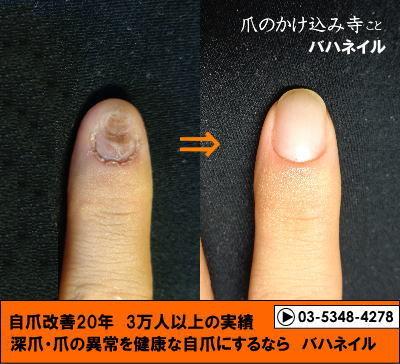 男性のゲスト 爪をむしる 深爪矯正の変化画像