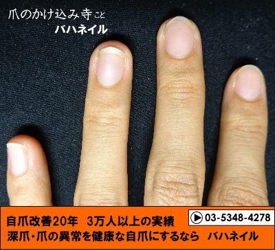 カイナメソッドの深爪矯正の変化画像