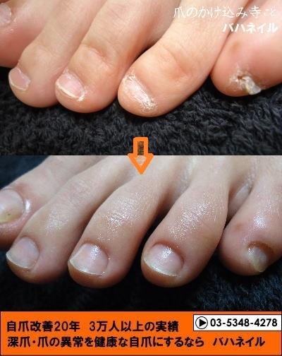 足の深爪自立矯正始めませんか? 変化画像