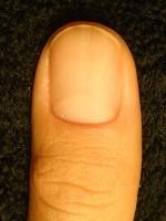 深爪自立矯正で指もスリムに変わった爪の画像