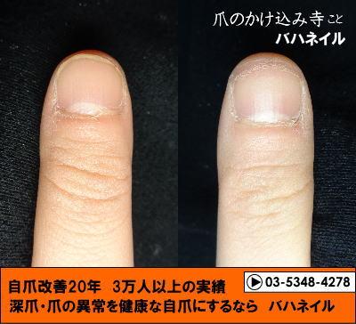 カイナメソッドによる深爪自立矯正 爪の変化画像 爪噛み