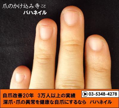 深爪矯正してから2年半後の自爪