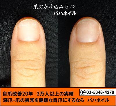 カイナメソッドによる深爪自立矯正の変化画像 爪噛みの癖