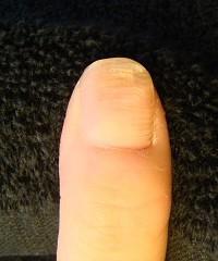爪のデコボコ 爪の病気の変化画像