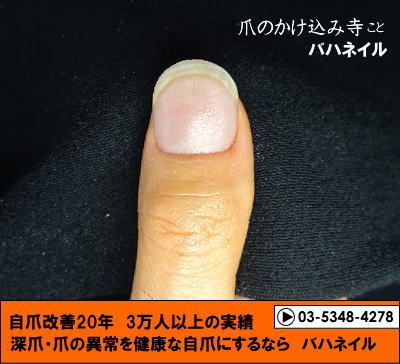 ギターを弾くゲストの為の矯正 人工爪施術後の画像