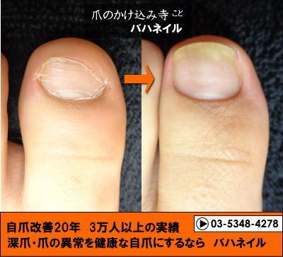 足の爪をむしる人の変化画像
