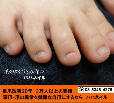 反り爪とむしり癖の足の深爪矯正の変化画像