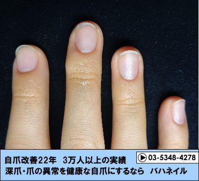 カイナメソッドによる深爪自立矯正で爪が横長から縦長へ変化 爪をいじる癖も解決