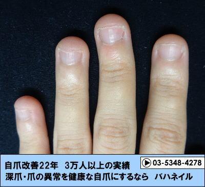 カイナメソッドによる深爪自立矯正の変化画像 爪を噛む癖