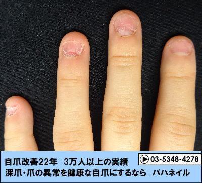 爪をむしる方の深爪矯正の変化画像