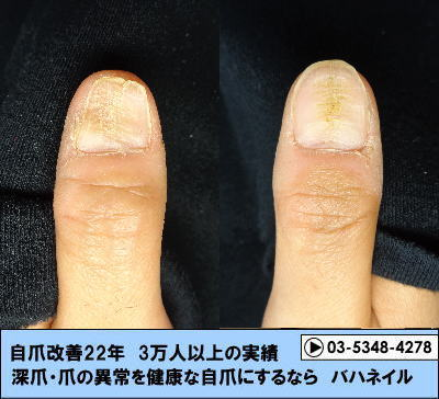 親指の爪ボコボコ変化画像