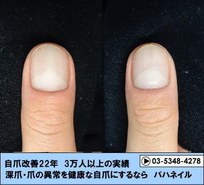 男性のボコボコ爪改善