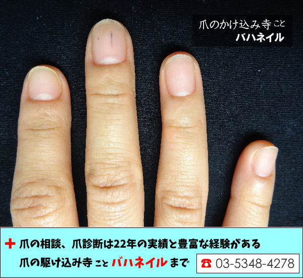 爪をむしる癖の改善治療画像