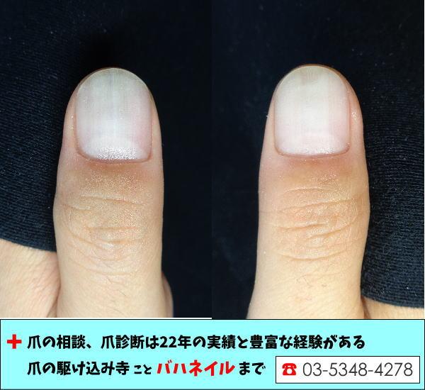 10年前から治らなかった爪が治った!