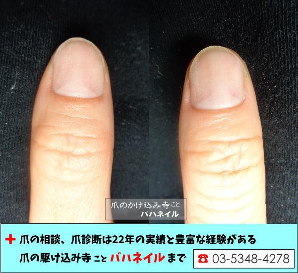 爪の白いところが多い