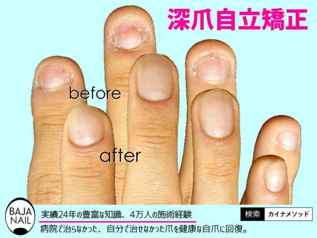 ここが違うバハネイルの深爪自立矯正
