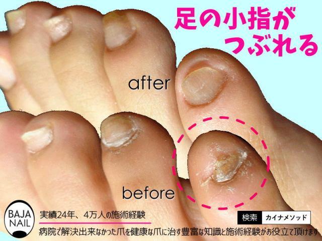 深爪だった素足の爪が綺麗に生えた