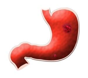 stomaco ulcera