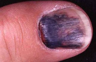 unghia macchia blu