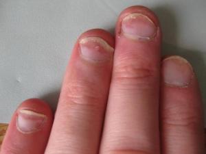 unghie macchie rosse psoriasi
