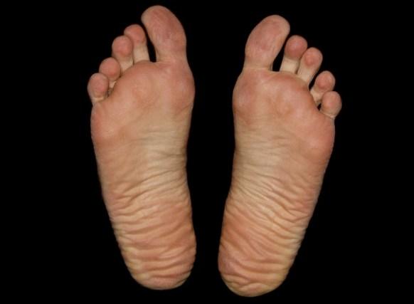 pianta piedi