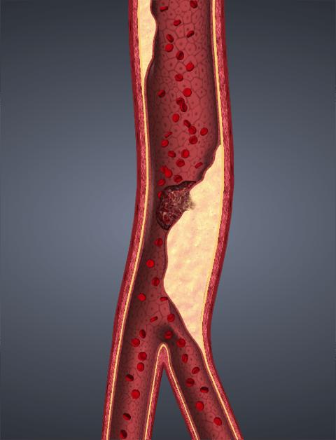 atherosclerosis.png
