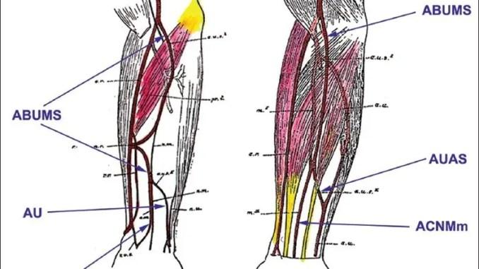 The scheme of two cases of a variant artery as drawn by Schwalbe in 1898. Legend: ABUMS – arteria brachioulnomediana superficialis, ACNMm – arteria comitans nervi mediani manus, AUAS – arteria ulnaris accessoria superficialis, AU – arteria ulnaris.