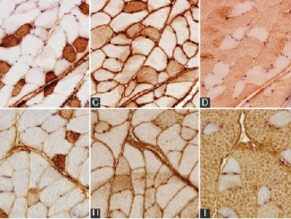 Researchers studied the lipid accumulation in skeletal muscles in obesity