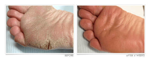 Cracked Feet Before and After TrueLipids